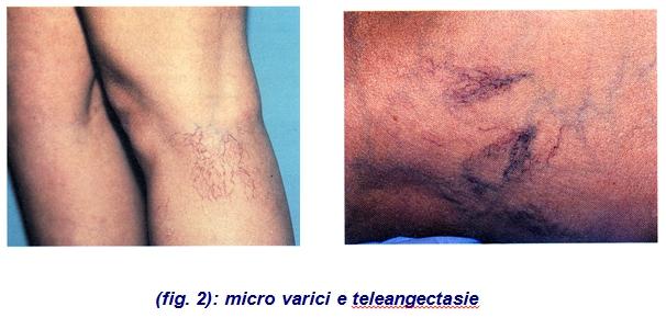 Askorutin e varicosity di vene